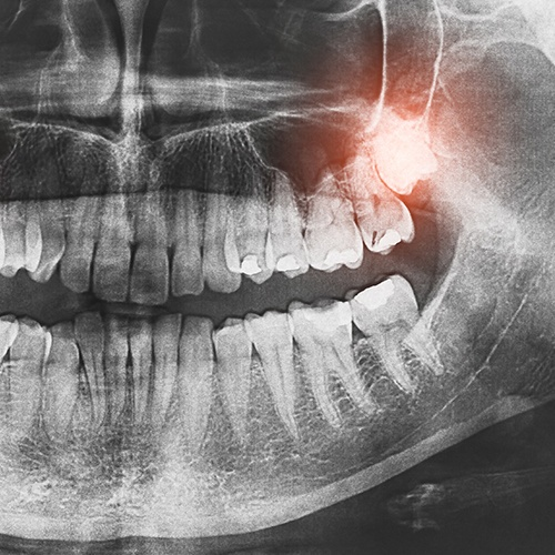 X-Ray of impacted wisdom tooth
